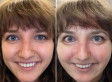 Drinking Mirror App Shows Us What Alcohol Does To Our Skin (PHOTOS)
