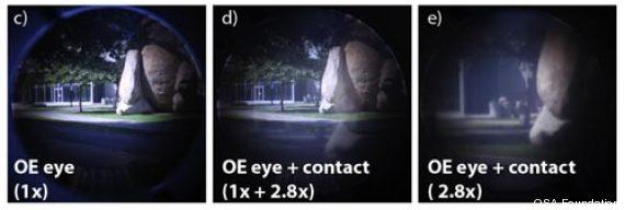 lentilles contact