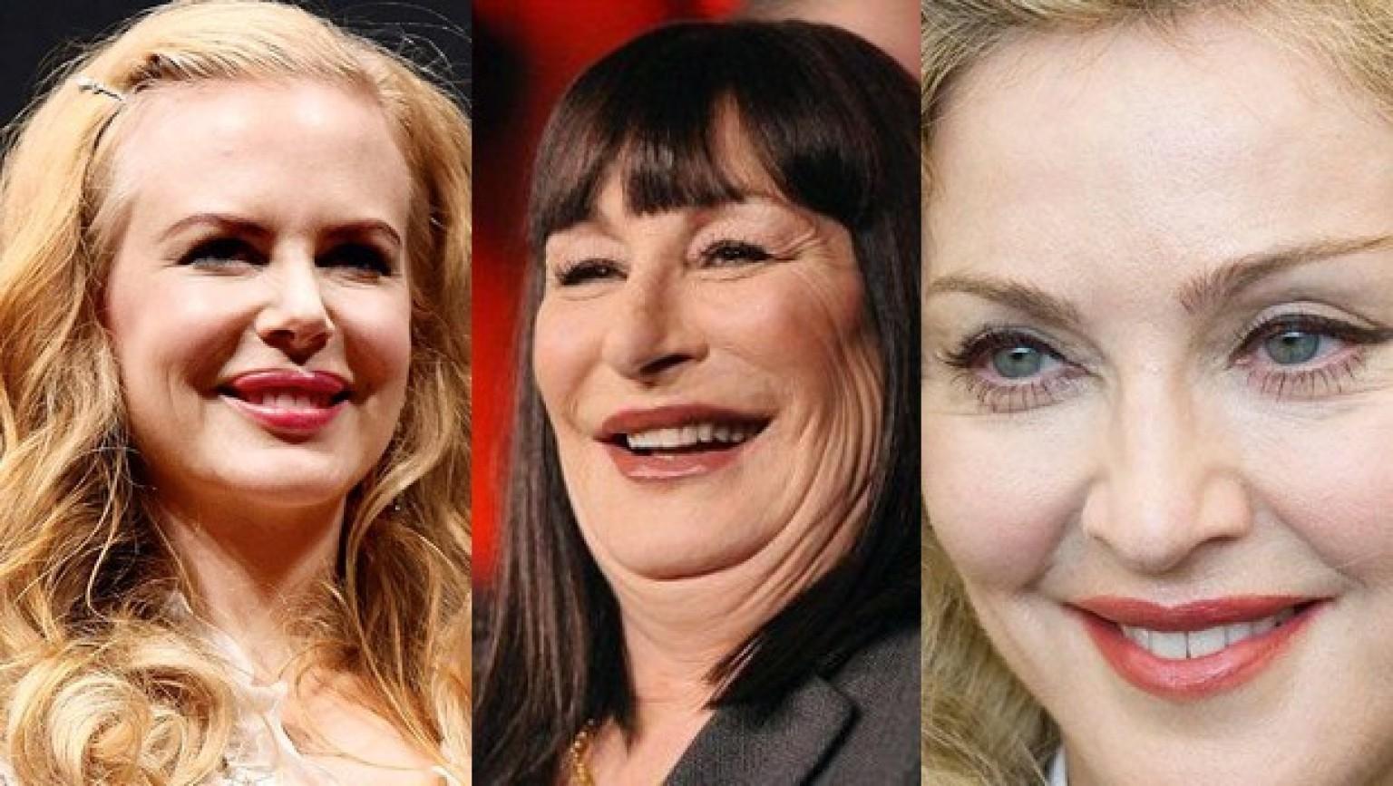Biggest Plastic Surgery Mistakes Celebrities Make