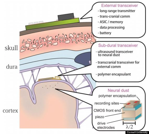 neural dust