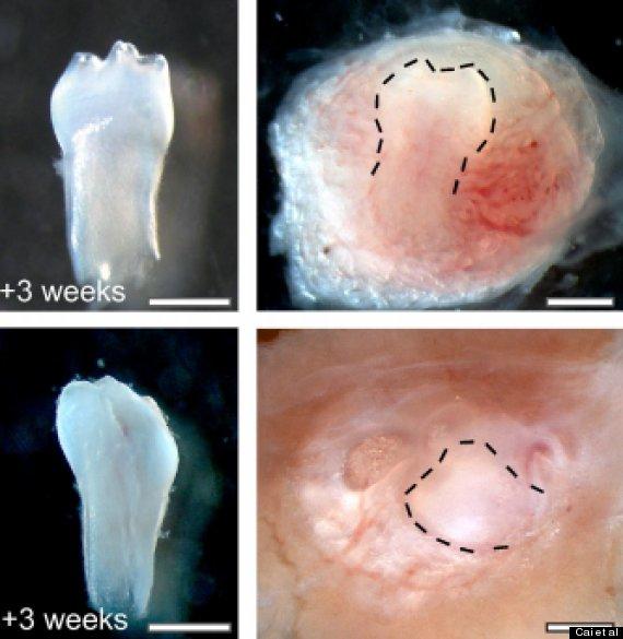 http://i.huffpost.com/gen/1272645/thumbs/o-URINE-STEM-CELLS-TEETH-570.jpg?6