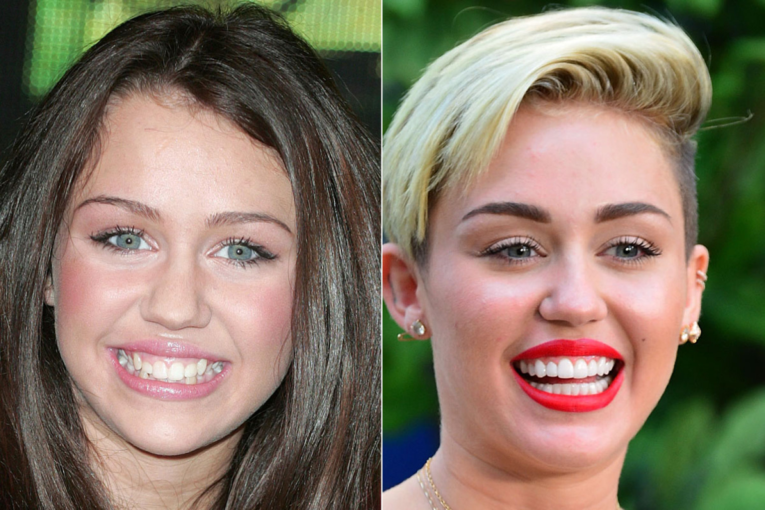 celebrities gone dental before and after photos of toothy