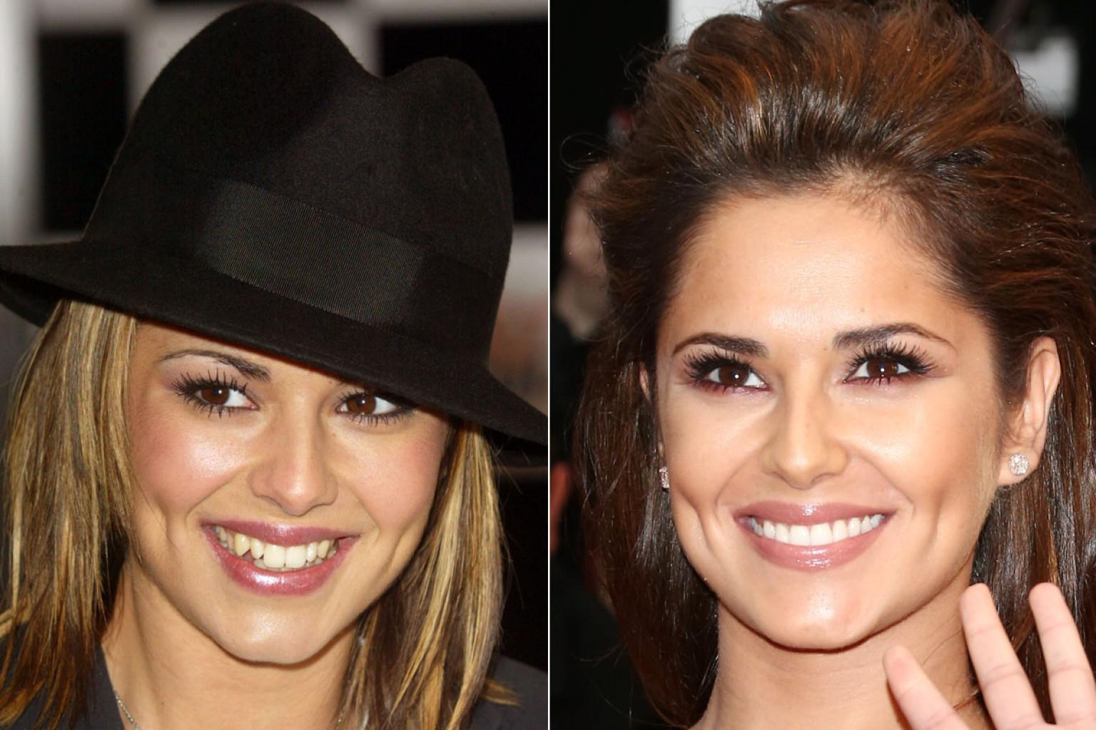 Celebrity Veneers Before And After Green Dental