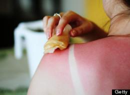 Why I'm Terrified I'll Get Skin Cancer