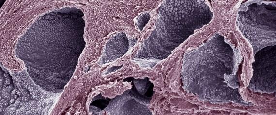 PROSTATE CANCER TUMOR