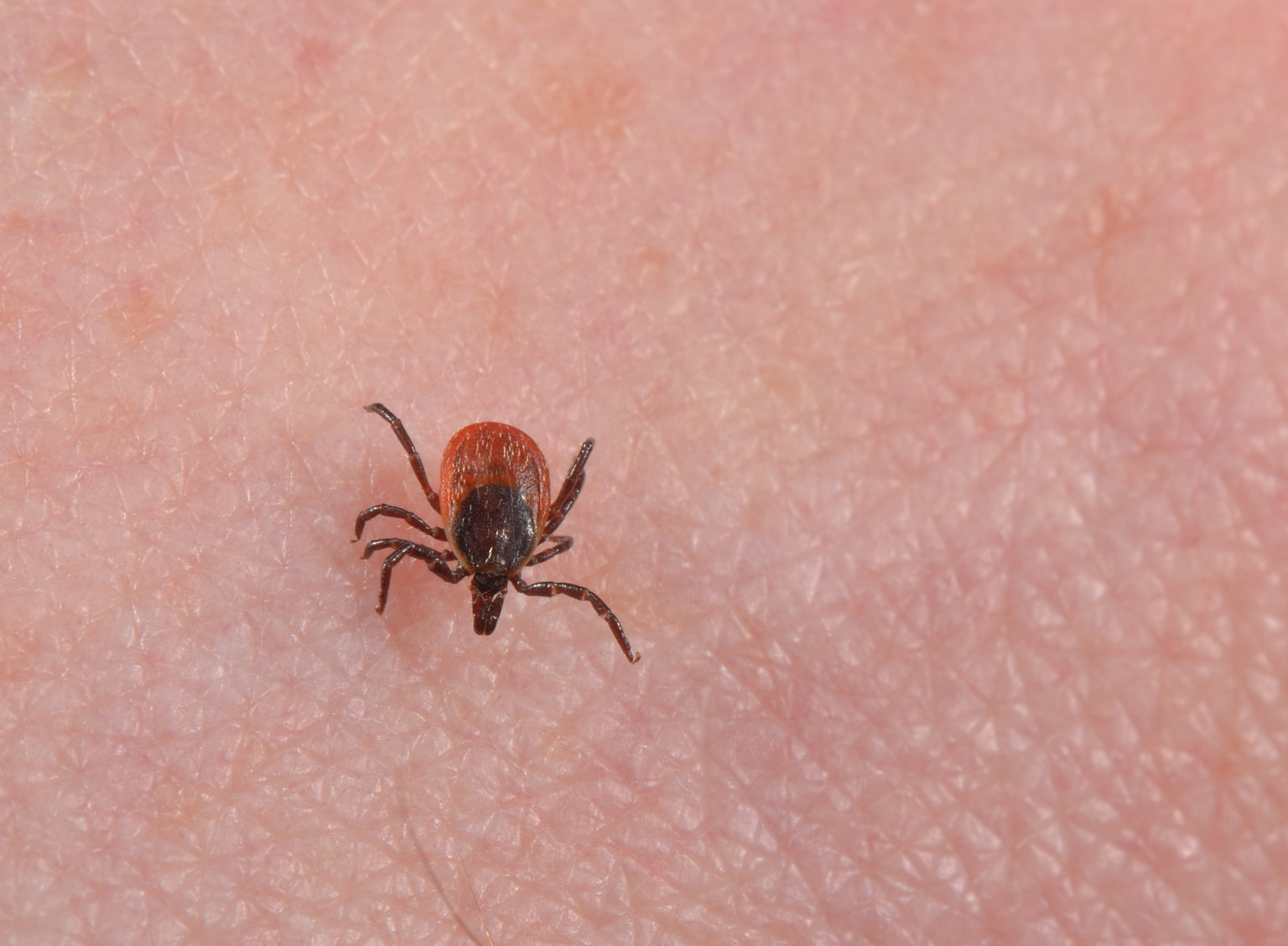 lyme s disease Lyme borreliosis (lyme disease) cause the spirochaete borrelia burgdorferi, of which there are several different serotypes transmission infection occurs through the bite of infected ticks, both adults and nymphs, of the genus ixodes.