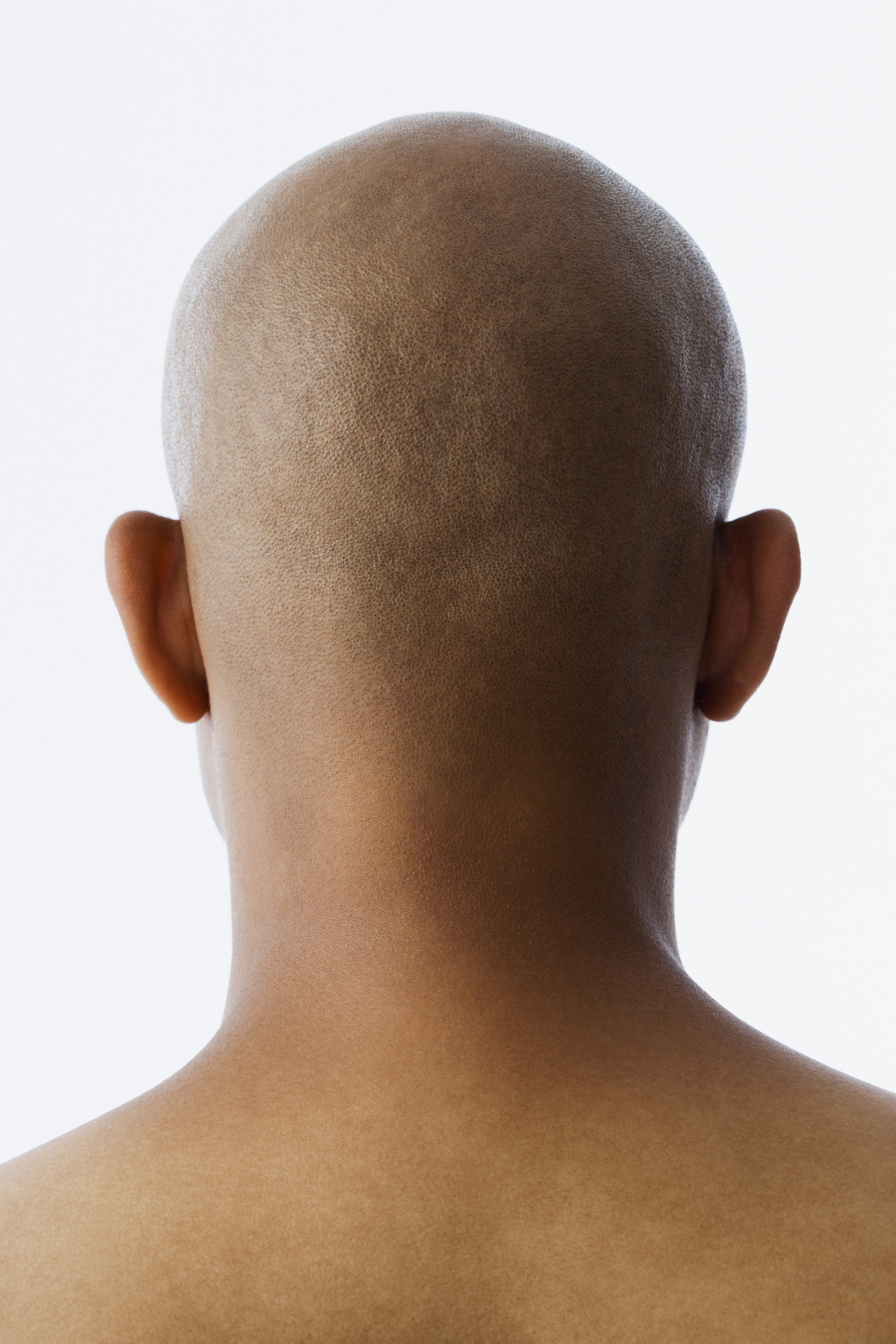 The Godfrey House Plan Back Of Head Black Men Bald Spot Early Balding May Raise