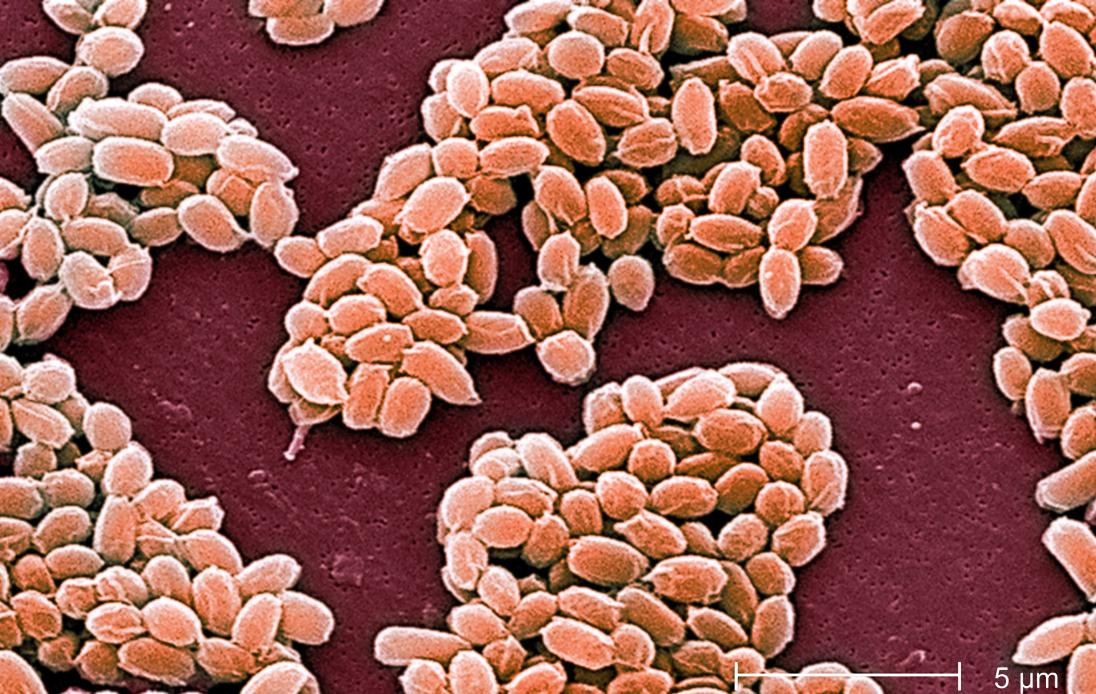 US Admits Live Anthrax Shipped To 24 US Labs & 2 Foreign Countries