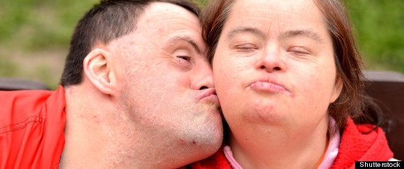 Down syndrome dating show
