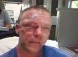 Wen Jones Beating: Arrests Made In Brutal Attack On Veteran Protecting Teen