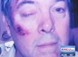 Jimmy Drummond, Texas Deputy Constable, Charged In Alleged Beating Of Family (UPDATED)