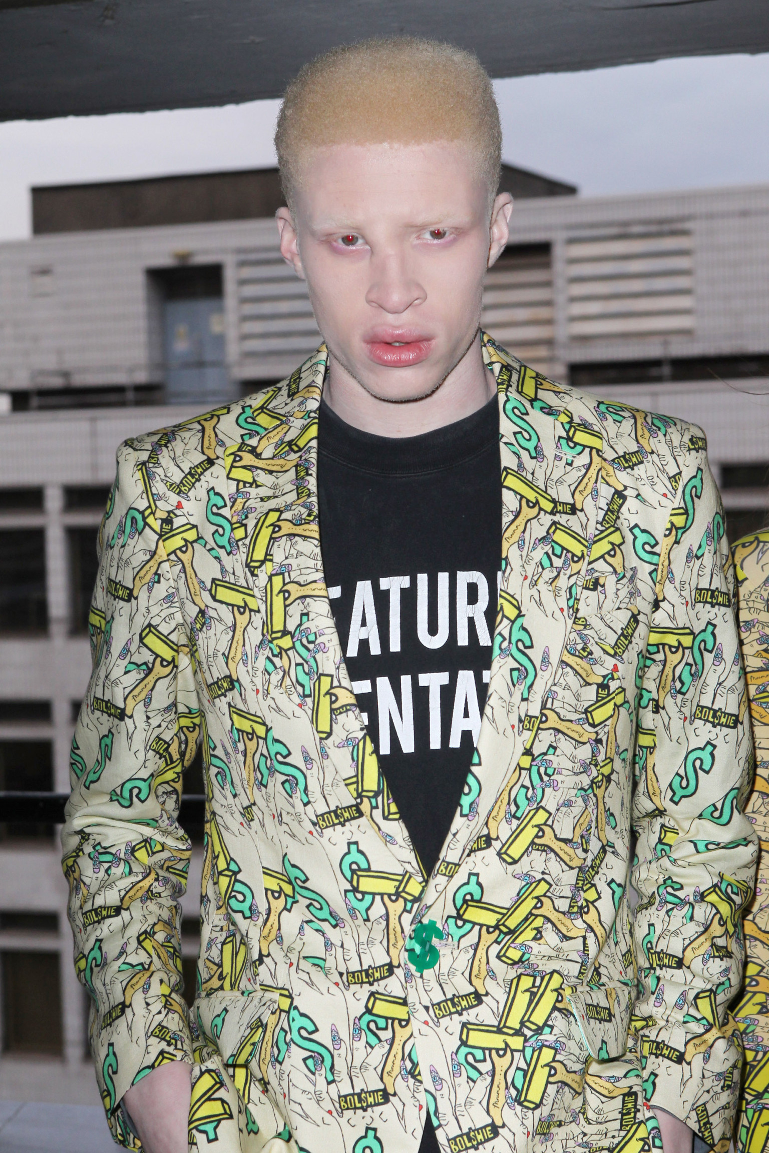 shaun ross  albino model  challenges fashion and beauty