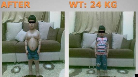 saudi arabian boy weight loss