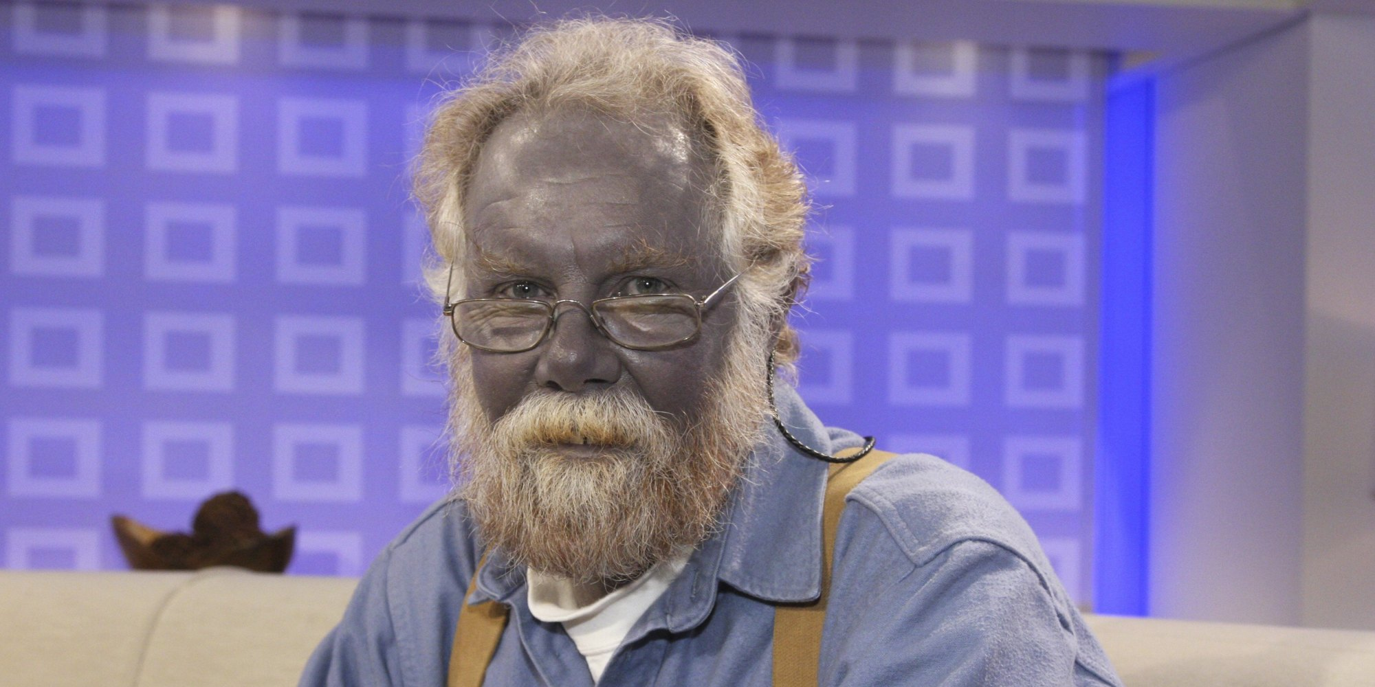 Drinking Too Much Colloidal Silver
