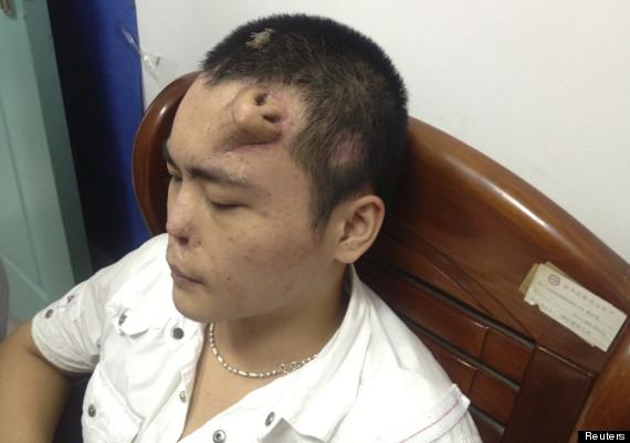 Aneh Pria China Ini Tumbuh Hidung Di Keningnya