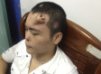 Xiaolian, Chinese Man, Grows New Nose On Forehead (VIDEO)