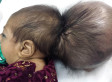 Asree Gul, Baby Born With Extra Head, Undergoes Operation In Afghanistan (PHOTOS)