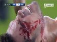 Pepe's Bloody Head Wound Stapled Shut In Real Madrid's Champions League Game (VIDEO/GIF)