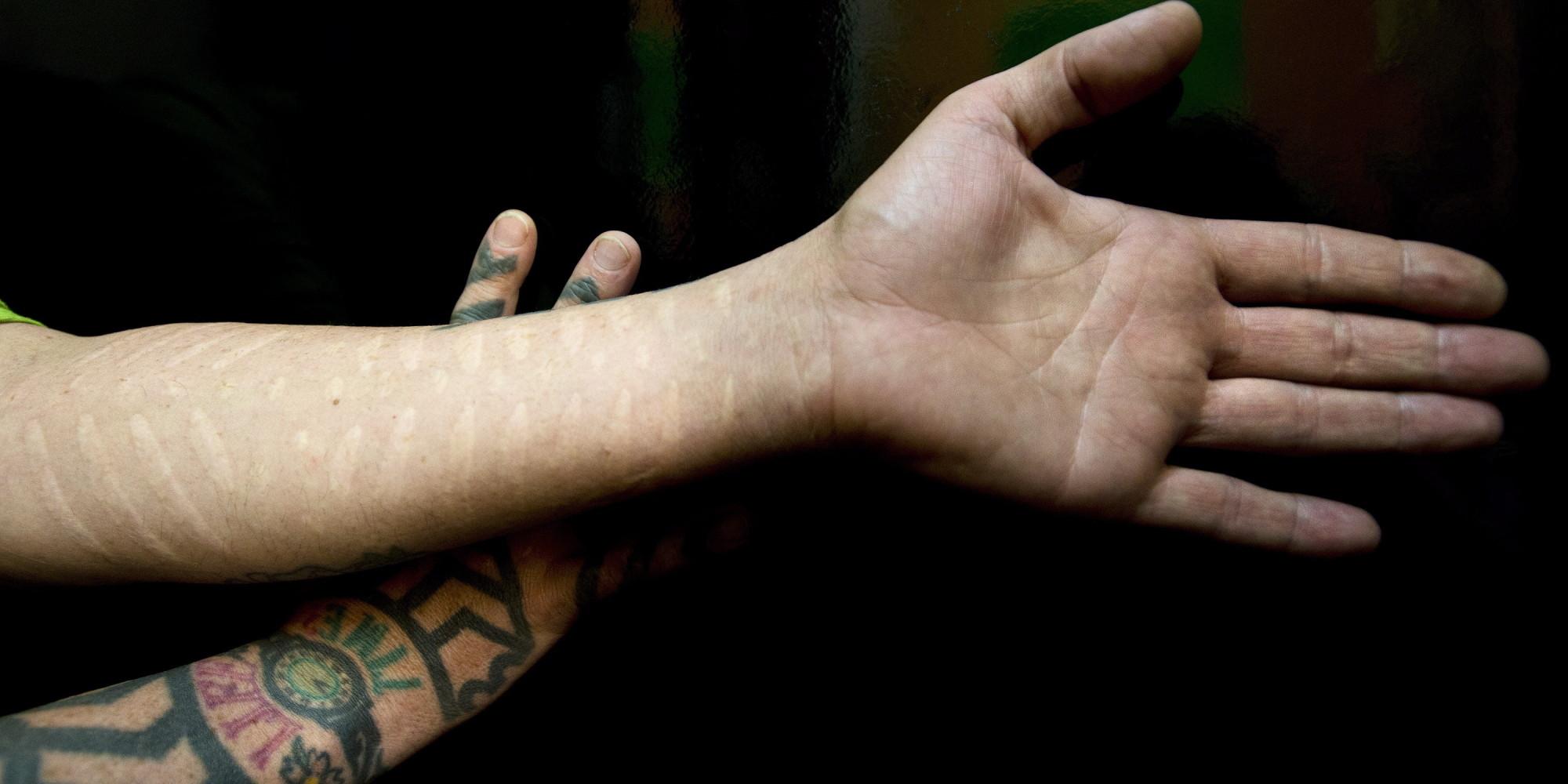 scarification les cicatrices plut t que le tatouage ou le per age. Black Bedroom Furniture Sets. Home Design Ideas