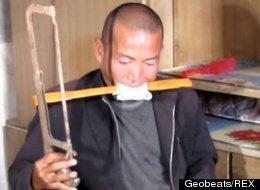 Chinese Farmer Amputates Own Leg