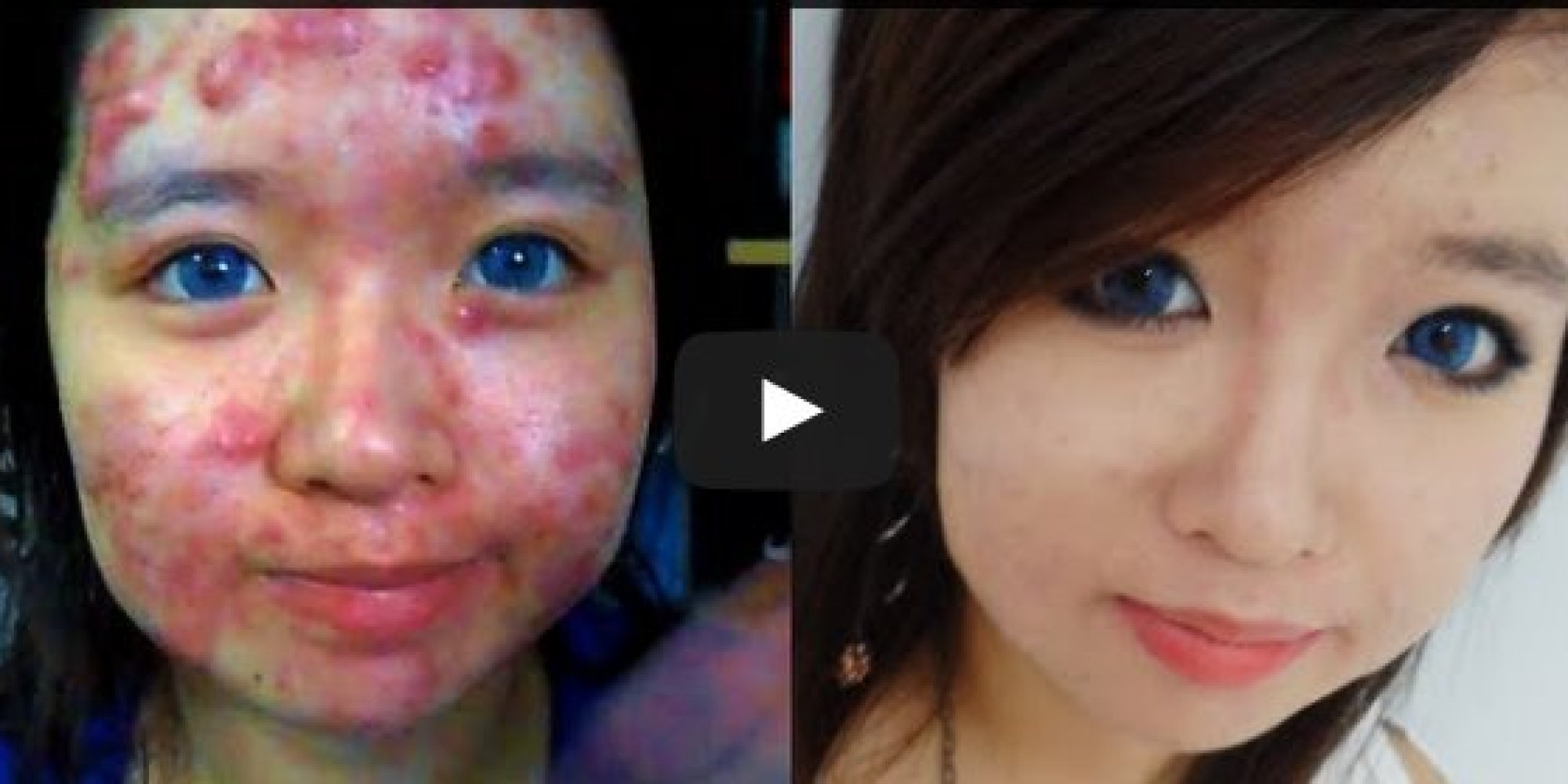 This Incredible Shows You How To Er Up Acne Makeup Ideas Extreme Transformation