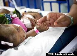 Formerly Conjoined Twin Dies 6 Months After Separation From Sister