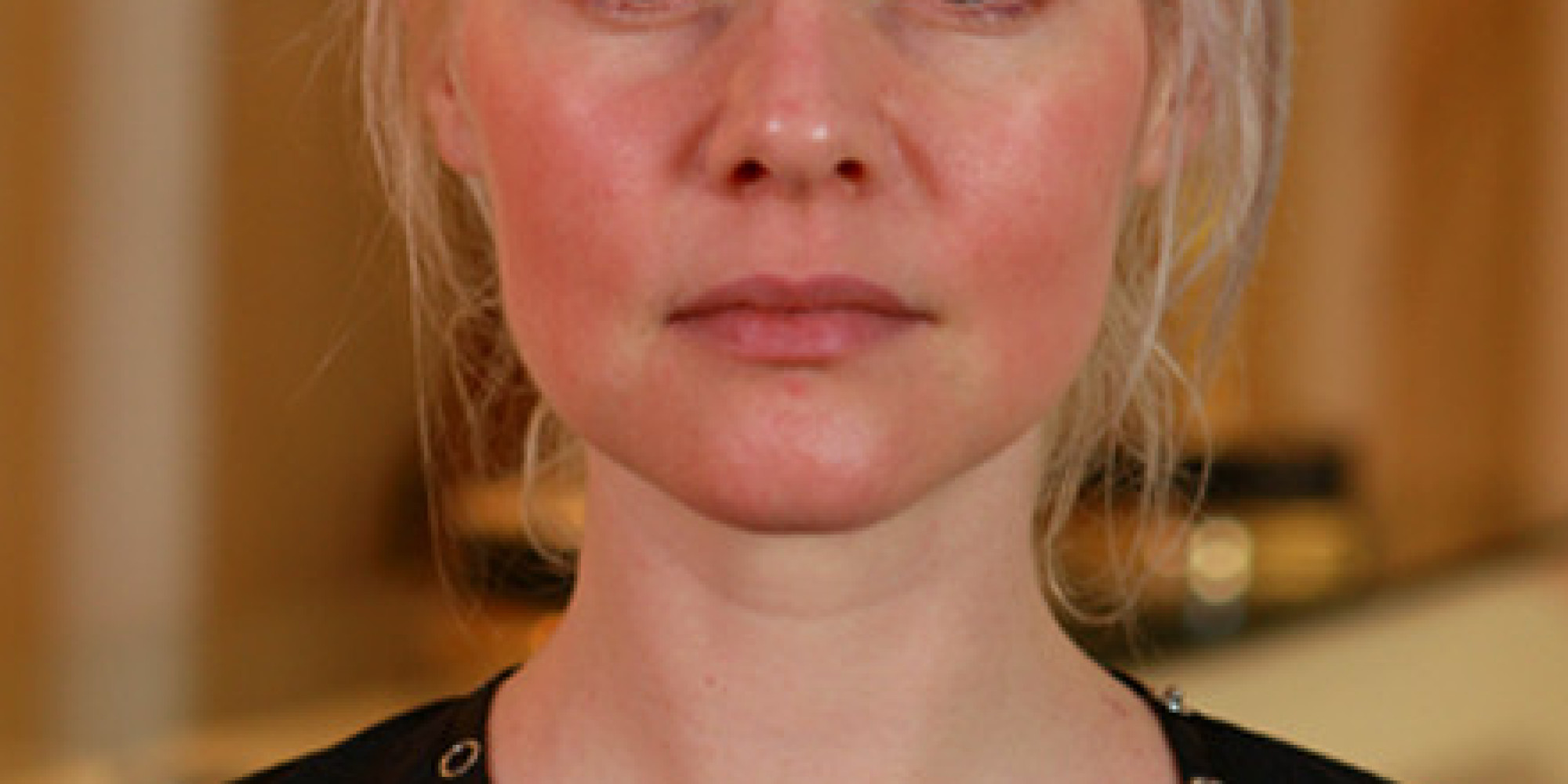 What People With Rosacea Need To Know About Concealing Redness & Treating  Flareups  Huffpost
