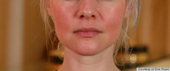 Facial redness cream pro
