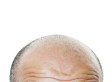 New Hair Loss Treatment Uses Baby Foreskins