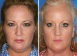 National No Smoking Day: Twin Photo Study Shows How Smoking Causes Premature Ageing
