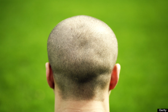 man hair loss