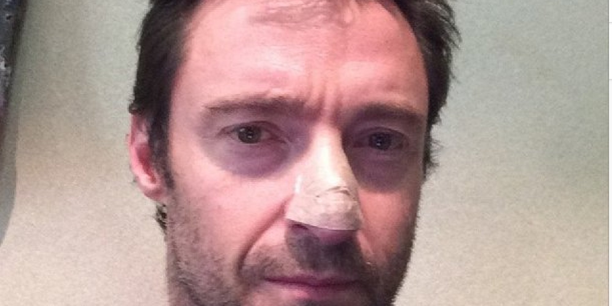 hugh jackman treated for skin cancer: what is basal cell carcinoma, Human Body