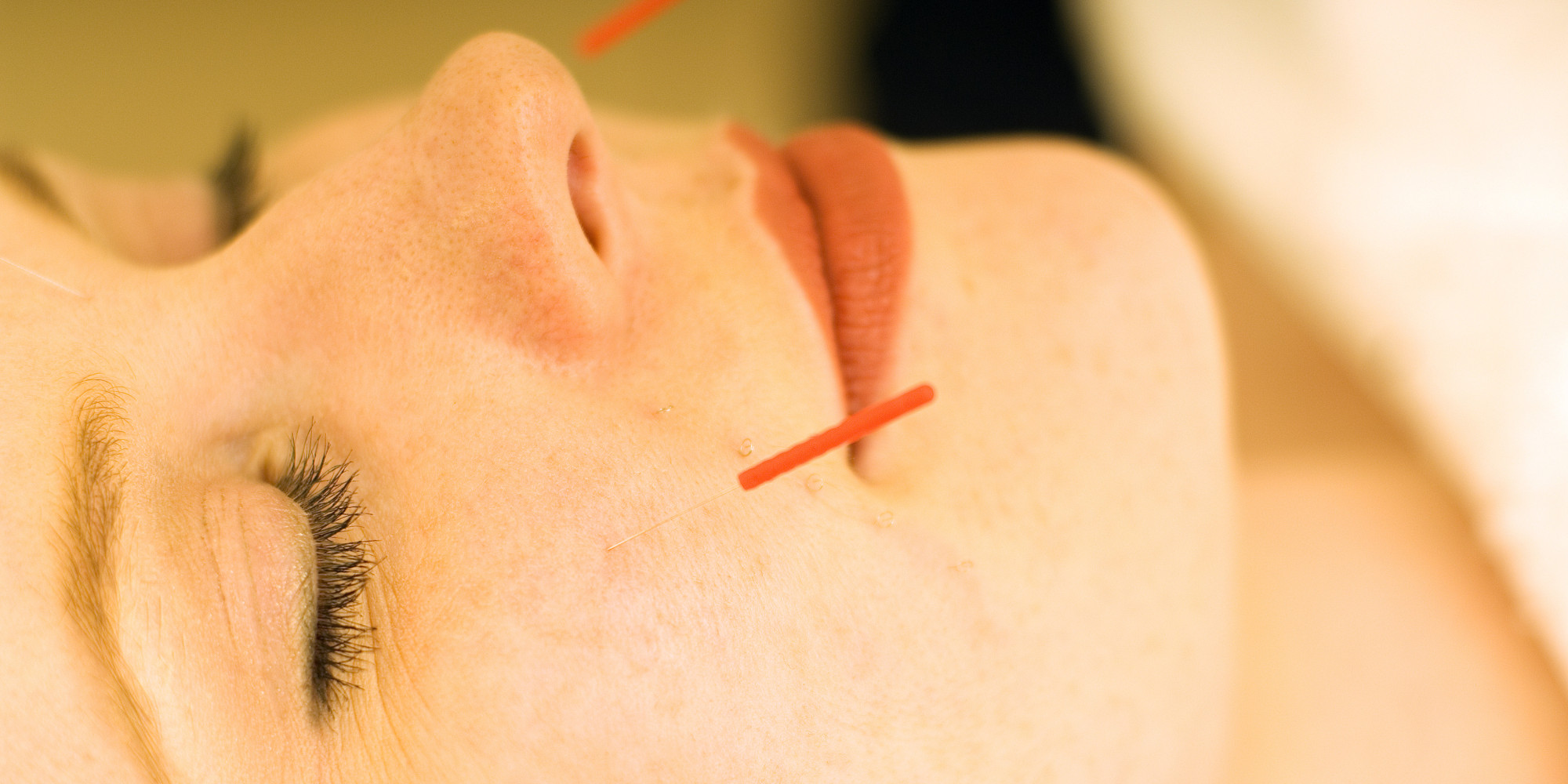 Tried Tested: Facial Acupuncture