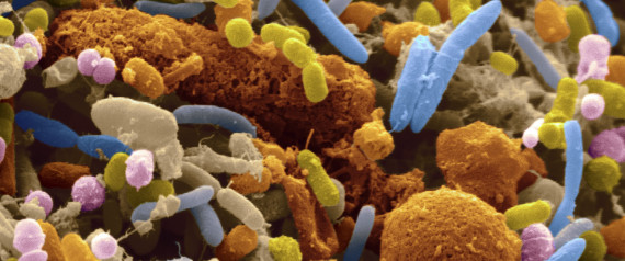 gut bacteria colorectal cancer