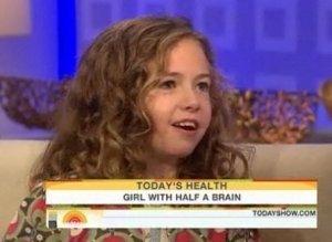 meet the girl with half a brain