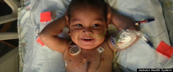 toddler 5 organ transplant