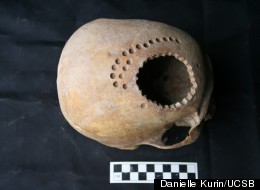 Why Did Ancients Drill Holes In Their Heads? New Research Yields Answer