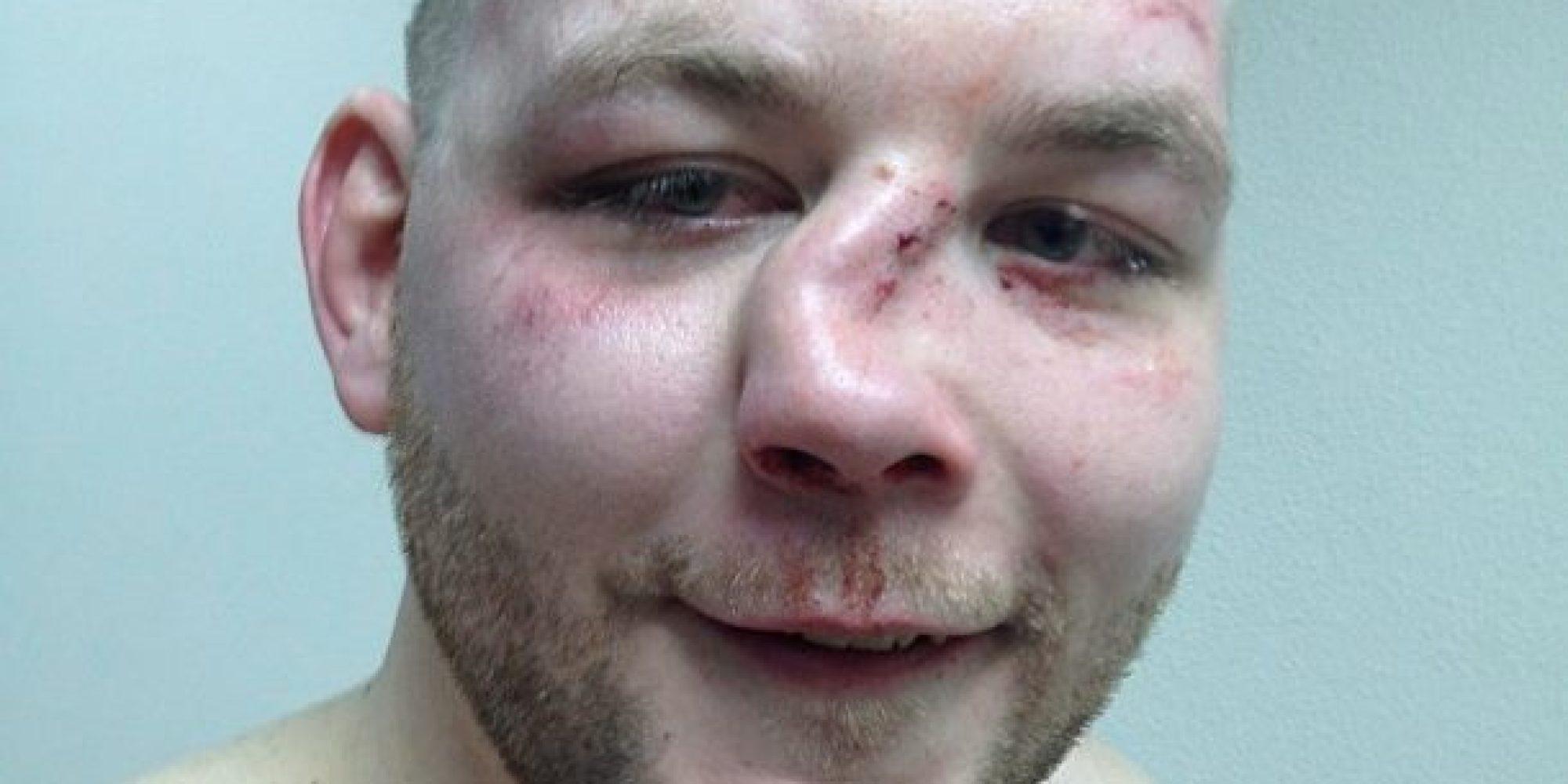Насколько Сломан нос тяжкийвред здоровью теряя
