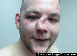 MMA Fighter Really Has No Reason To Smile