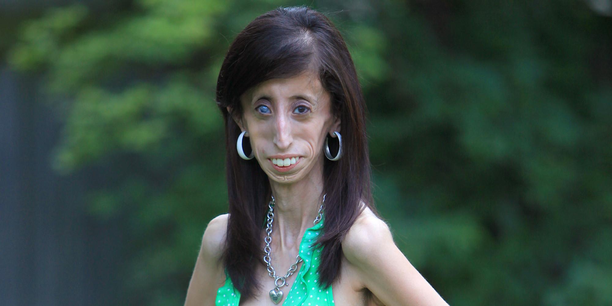 Hässlichste Frau Der Welt