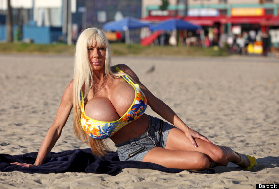breast implants elizabeth starr