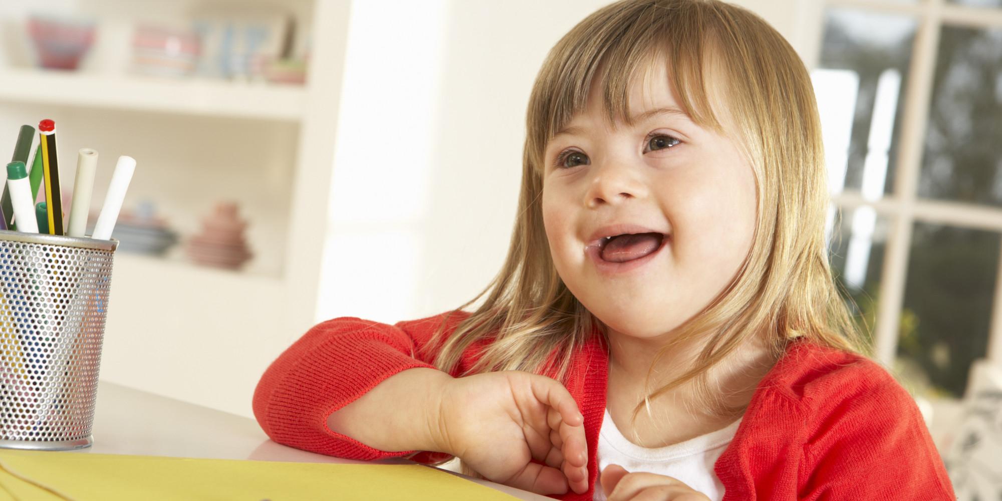 """""""Adotei uma criança com síndrome de Down"""" - photo#6"""