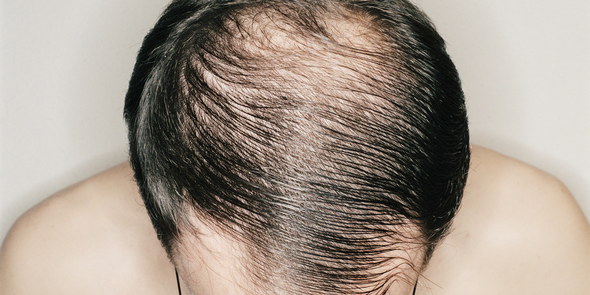 How long after stopping propecia does hair fall out