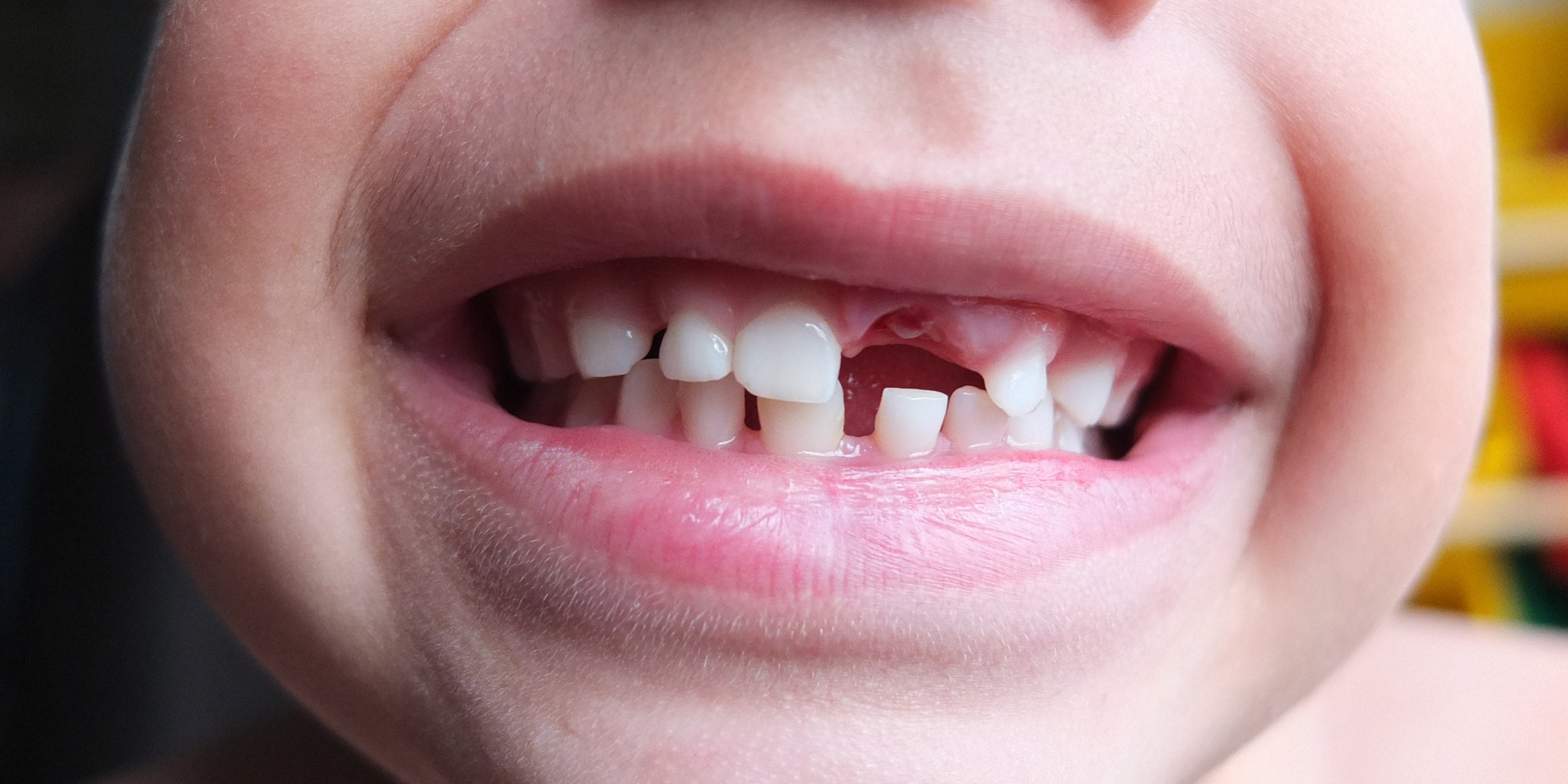 Baby Bottle Tooth Decay | Kellogg & Latz Dentistry |Decayed Toddler Teeth