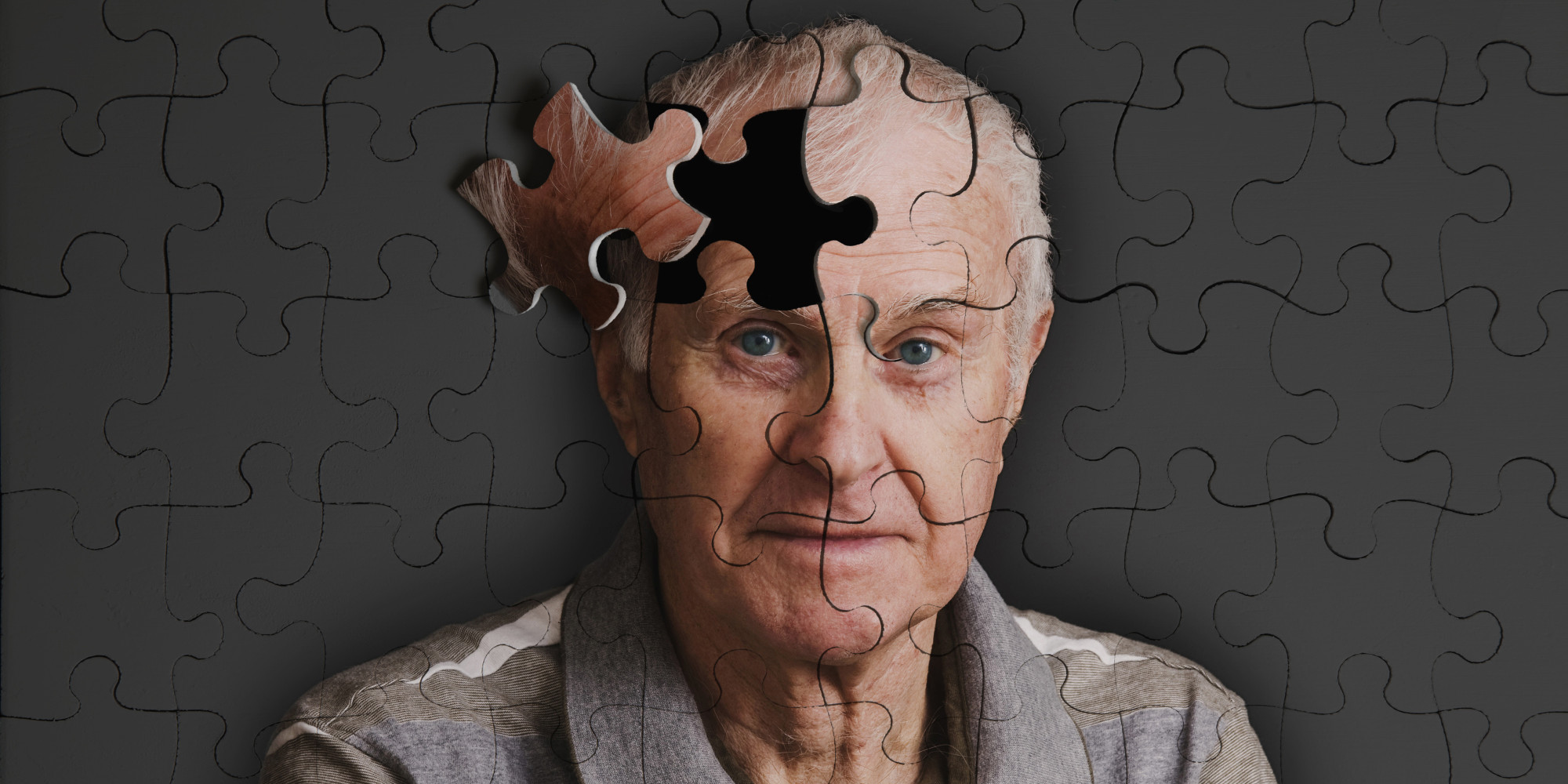 اسباب فقدان الذاكرة وطرق العلاج منها O-MEMORY-LOSS-facebook