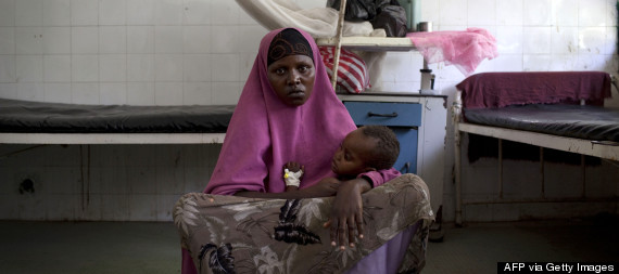somalia malnutrition