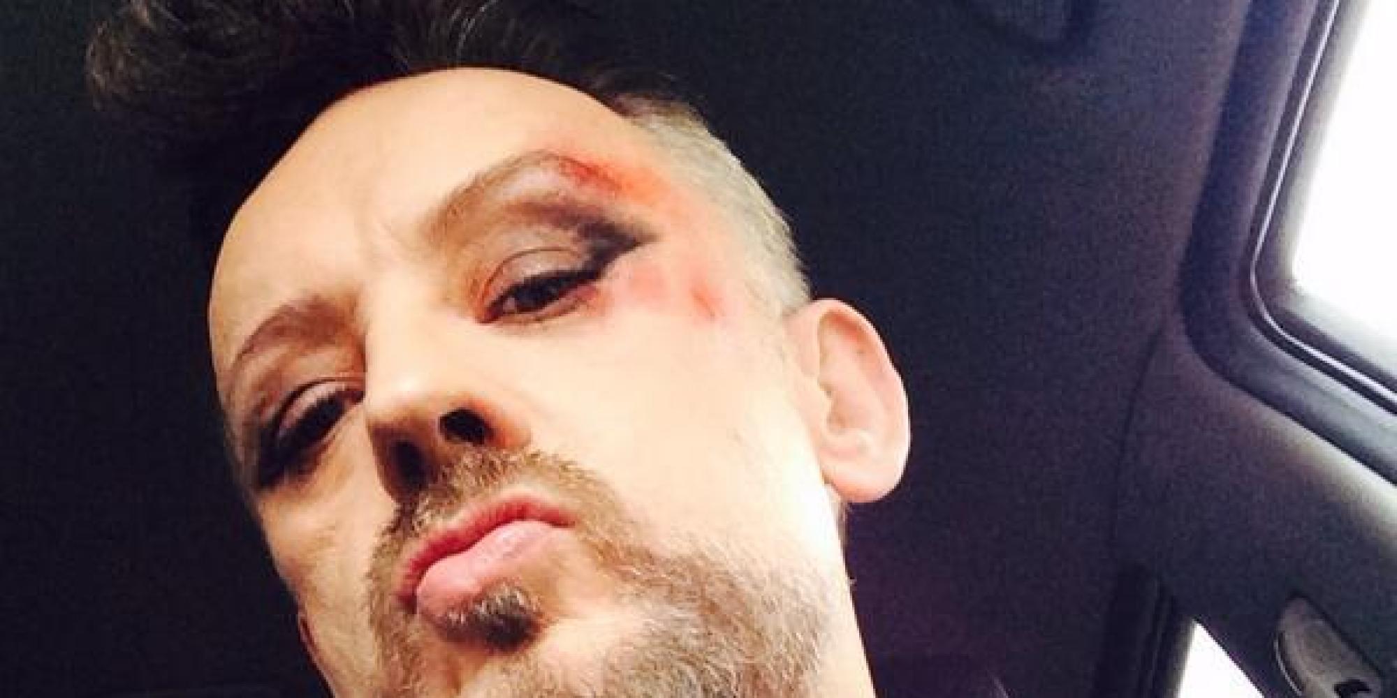 boy george walks  red carpet  bruiselike makeup  hes  fashion victim