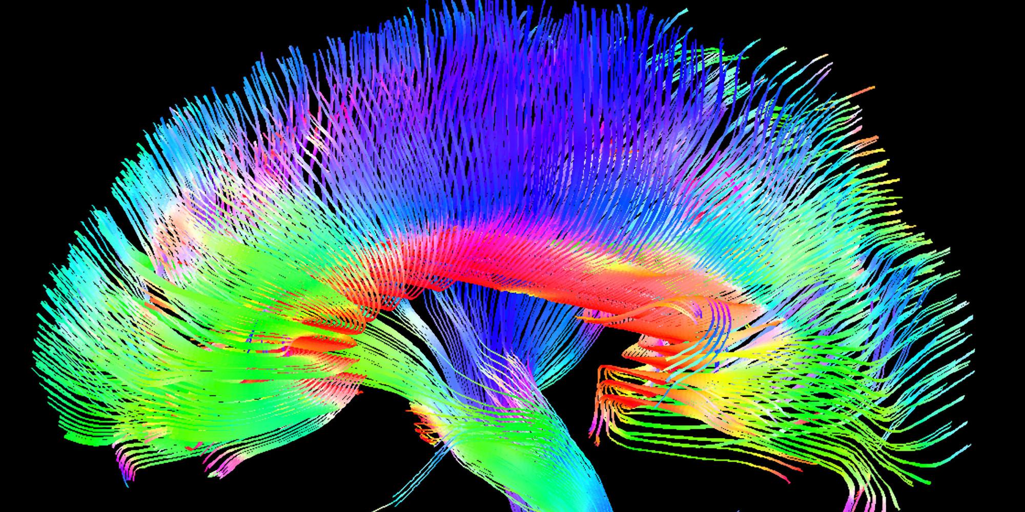 Трактография мозолистого тела.