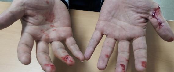 POLICE HAND