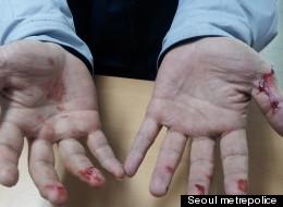 시민을 감동시킨 한 경찰관의 피묻은 손